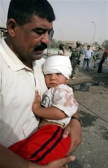 This child was one of today's casualties the man carrying him is his father