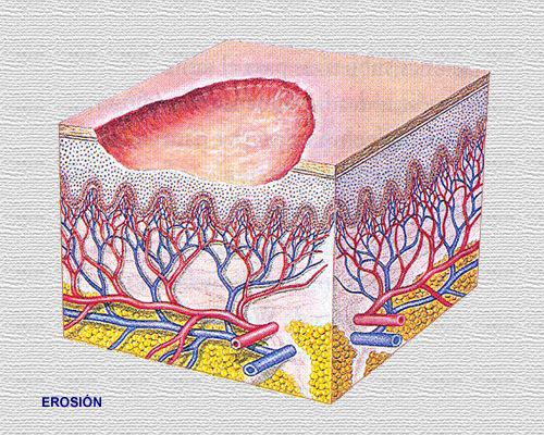 lesiones elementales en la piel: