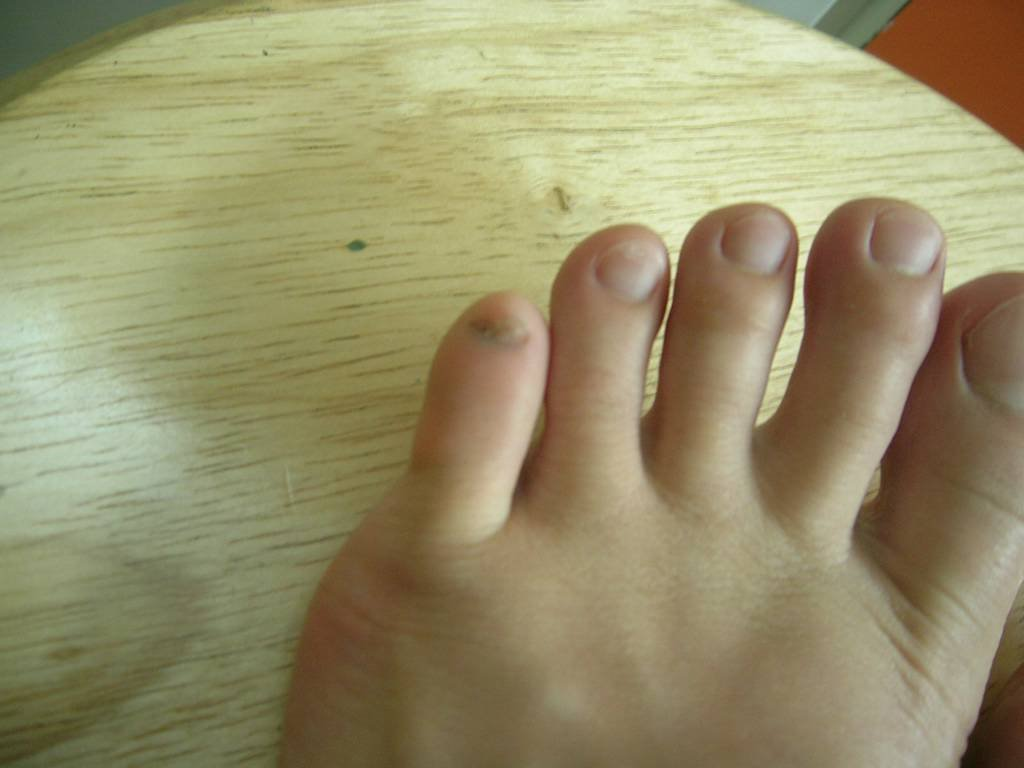 Disgusting Toe Nails