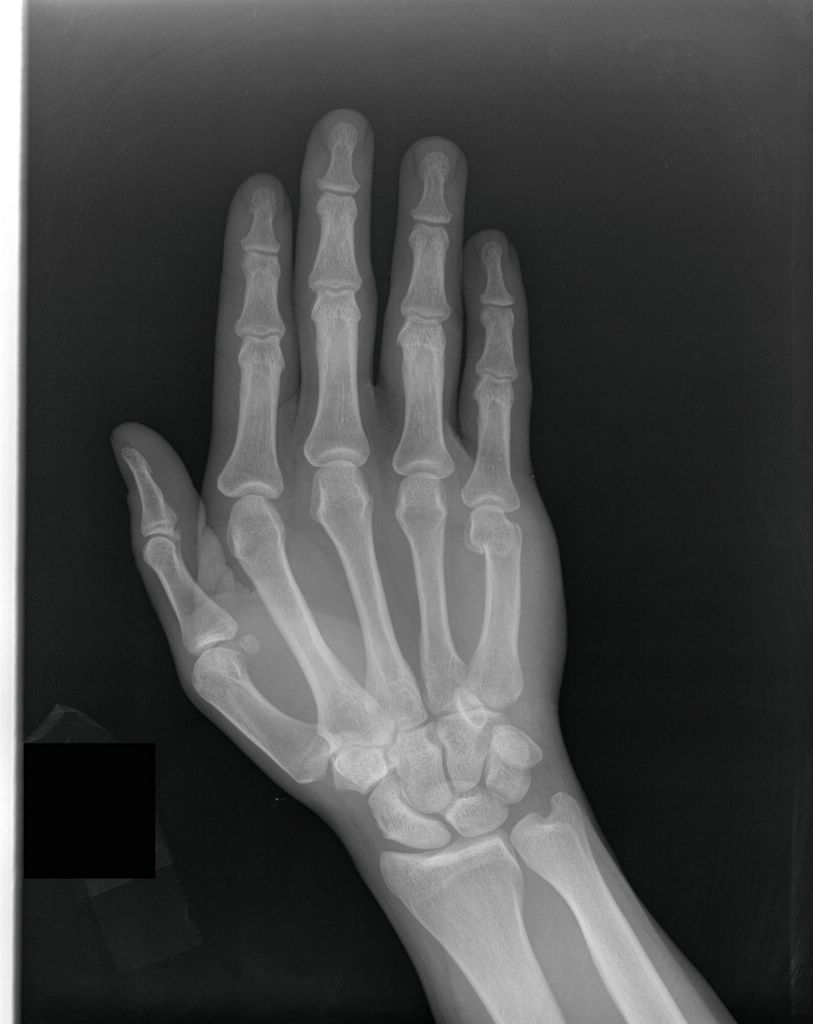 Boxer's fracture (click to enlarge the images).