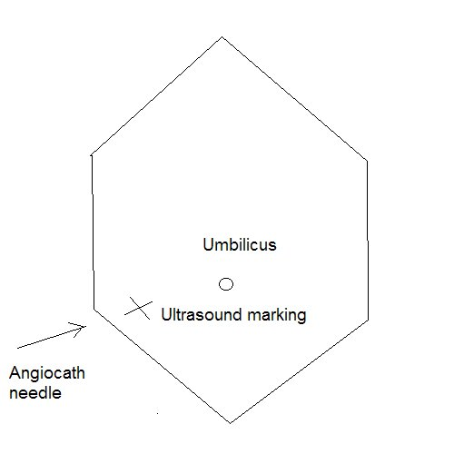 Ultrasound marking and direction of Angiocath needle (click to enlrage ...