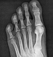 Broken Pinky Toe