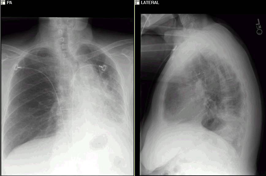 pulmonary roundtable: october 2005, Skeleton