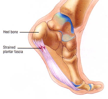 Bottom Of the Foot Pain strained fascia