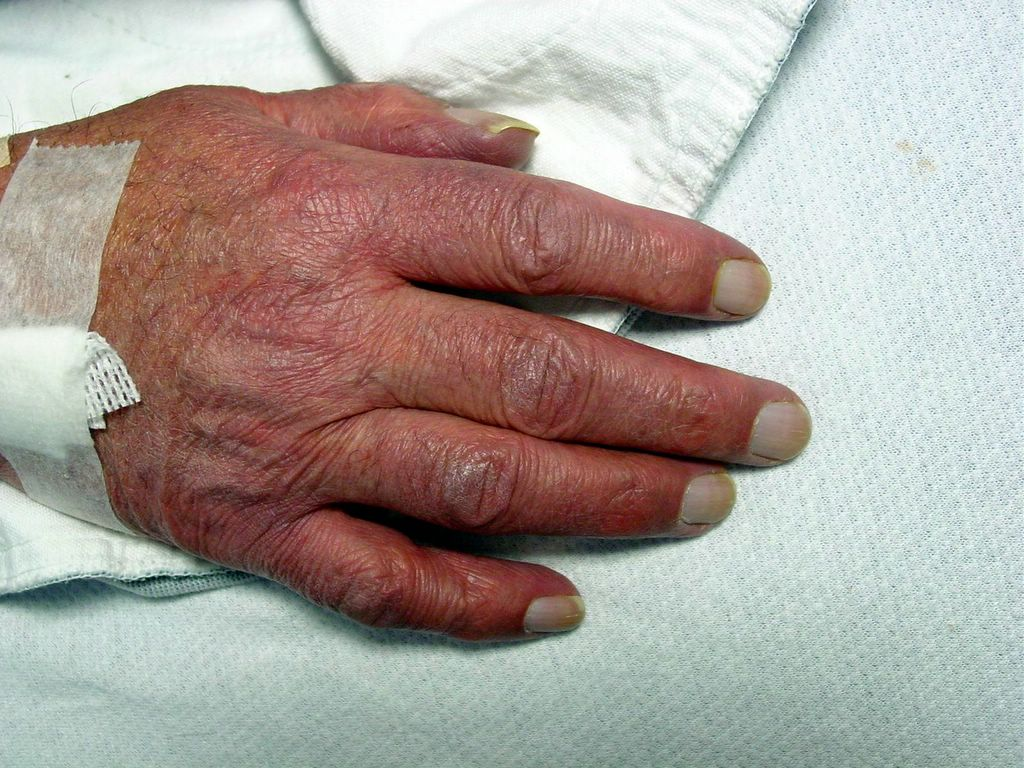 Acrocyanosis | definition of acrocyanosis by Medical ...