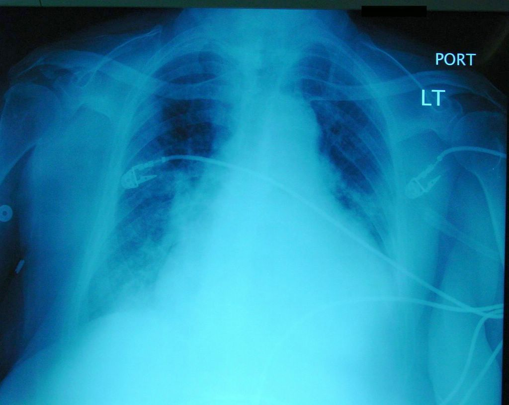 Interstitial Pulmonary Edema CXR