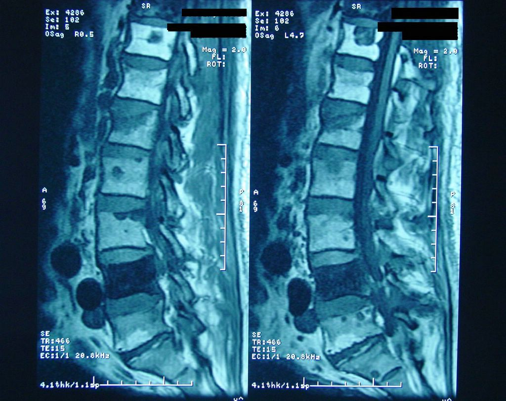 Mri Spine Metastasis Mri of The Lumbar Spine Shows
