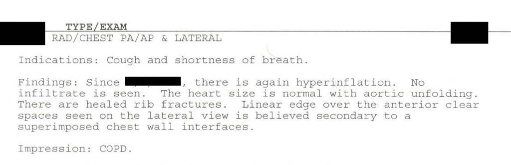 Pneumonia Chest X-Ray Report Example