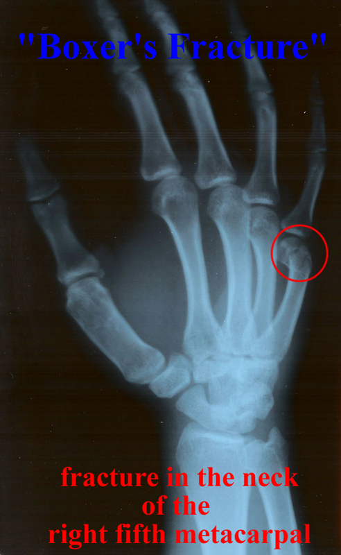 fracture the annotated x ray what is the diagnosis boxer s fracture -photos1.blogger.com