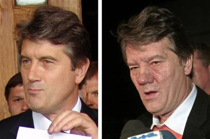This combination photo depicts Viktor Yushchenko, Ukraine's opposition leader and top presidential candidate, before and after his mysterious illness.  On the left, Yushchenko is seen after he submitted his candidacy papers in the Ukrainian capital of Kiev on July 4, 2004. On the right, Yushchenko, with his face disfigured by illness, is seen speaking to media as he arrived in Kiev's Boryspil airport late Sunday, Oct. 10, 2004. Yushchenko returned home from Austria, where he was treated for what his allies described as poisoning by his political opponents. (AP Photo/Efrem Lukatsky)