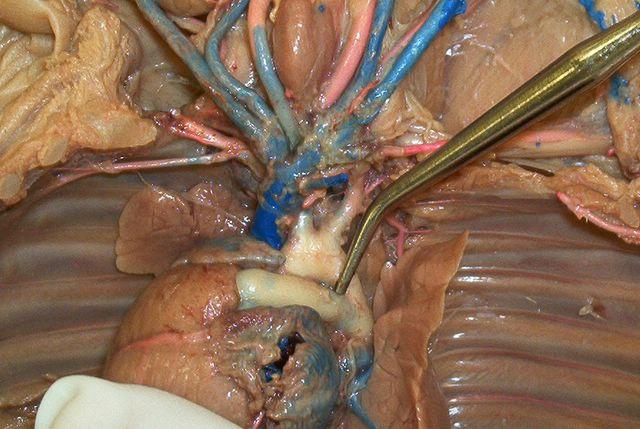 Ductus Arteriosus Anatomy Ductus Arteriosus