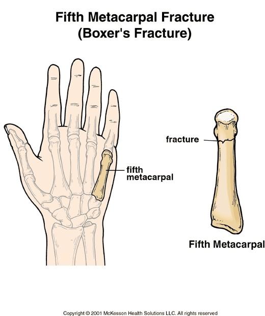 Diagram Of Left Hand Broken Knuckle Wiring Diagram