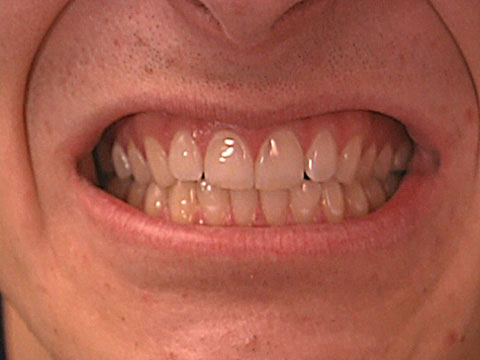 reduce swelling teeth quickly wisdom to how