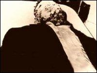 Emmett Till open casket