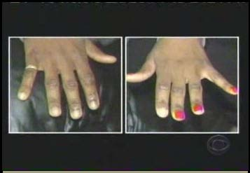accuser's hands and fingernails from police photo