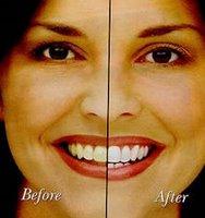 Voor en na witprocedure