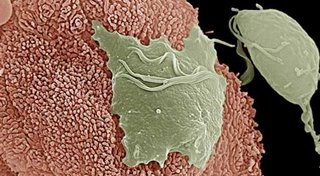 Estudio revela trucos de parásito vinculado al sida