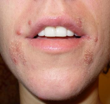 Best Treatment For Dry Lips From Accutane