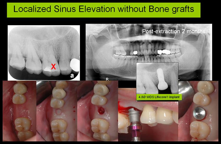Sinus Floor Elevation Implant : Localized sinus elevation without bone grafting flapless