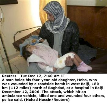 4 year old Iraqi girl injured in bombing
