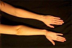 Upper limb hypermobility