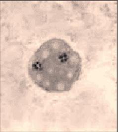 Trofozoito de Dientamoeba fragilis, NO presenta estado de quiste