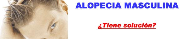 CAIDA DEL CABELLO-Alopecia masculina