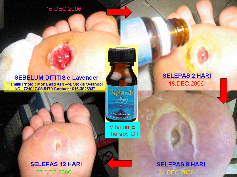 Vitamin E eLavender