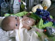 Matthew after his first open heart surgery