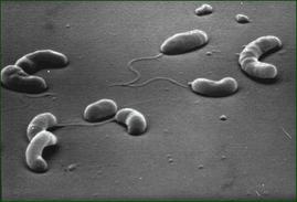 Vibrio cholerae, bacteria causante de la enfermedad del Cólera