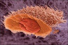 CELULA CANCEROSA