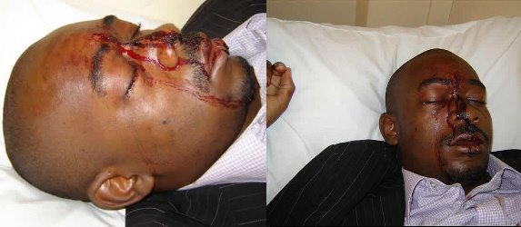 MDC SPOKESMAN NELSON CHAMISA LEFT FOR DEAD....