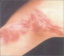 Hiperfosfatemia 2