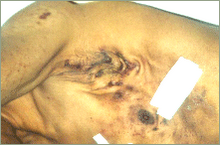 Hiperfosfatemia