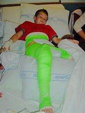 "Max""s Green Leg!"