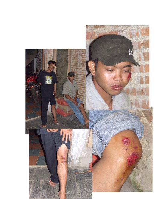 "Cilutung Victims of the ""Japanese Dogbite"""