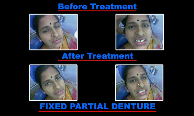 fixed partial denture