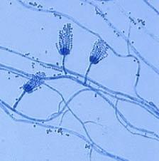 Penicillium sp, hongo productor de penicilina