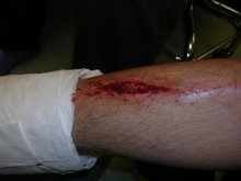 Christopher's Gashed Leg