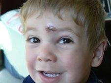 Evan's stitches