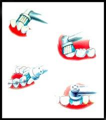 Uso de Cepillo Eléctrico