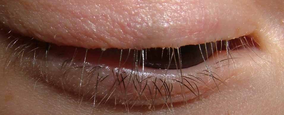 Virtual Grand Rounds In Dermatology 2 0 Eye Lash Alopecia