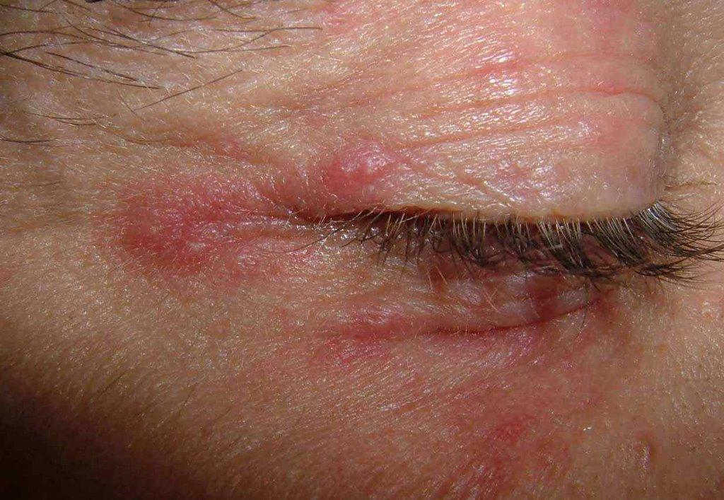 Periocular Dermatitis ~ vgrd-Bleacher-Report