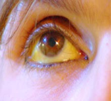 Hepatitis B Patient Eyes hepatitis b patient eyes La
