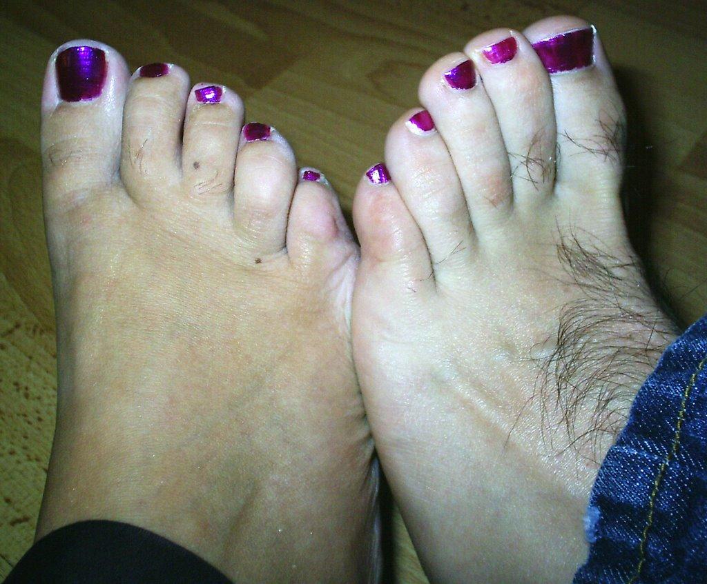 Big Hairy Toes 55
