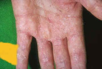 micosis en la piel