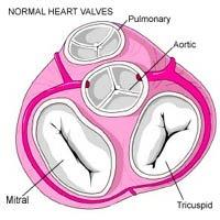 DubNet - Surgery: Heart Valve Diagram