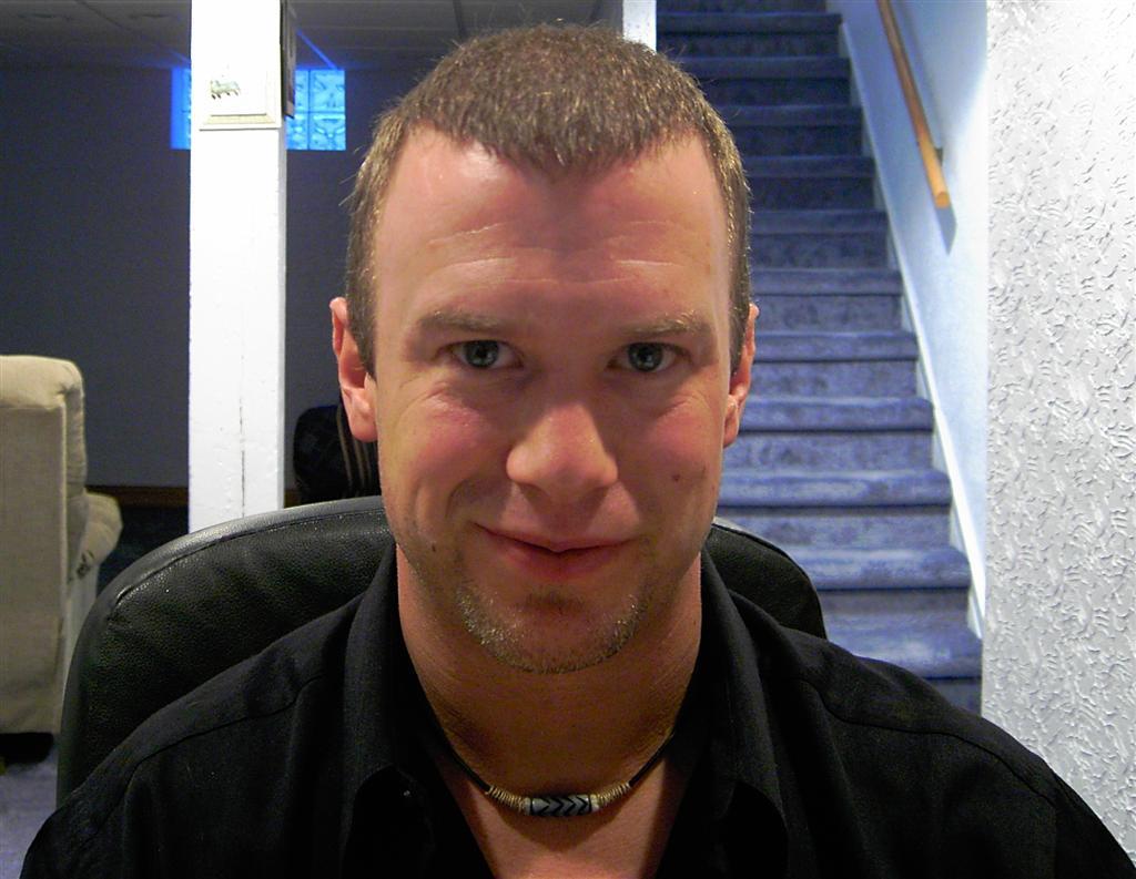 Hair Transplant Blog Bobmans Hair Loss Story