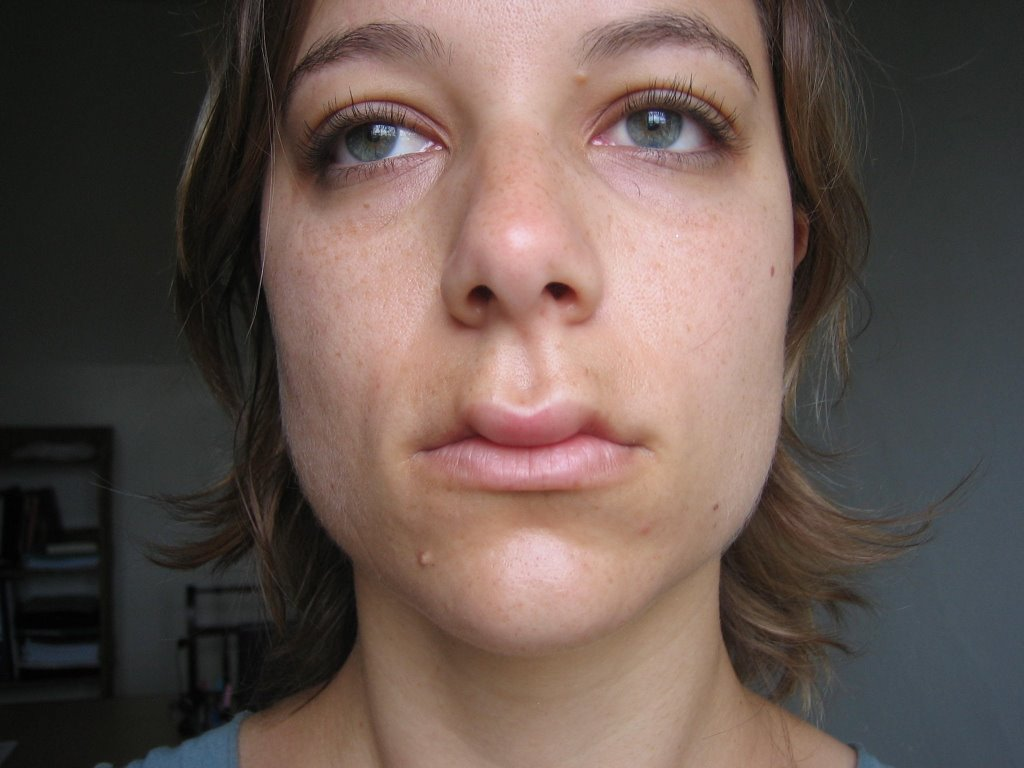 Mosquito bites on lip