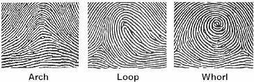 Headlines on Human Hands: Do you have unusual fingerprints?